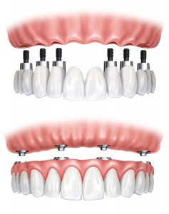 all on 4 implantes dentarios